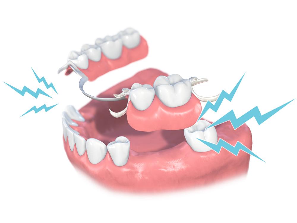 入れ歯は歯茎や健康な歯に負担がかかって痛い