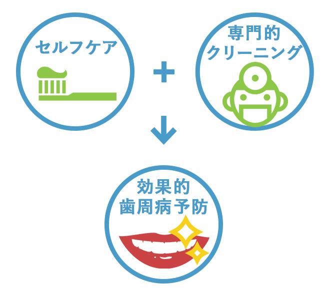 歯周病予防にはプラークコントロールの徹底が重要