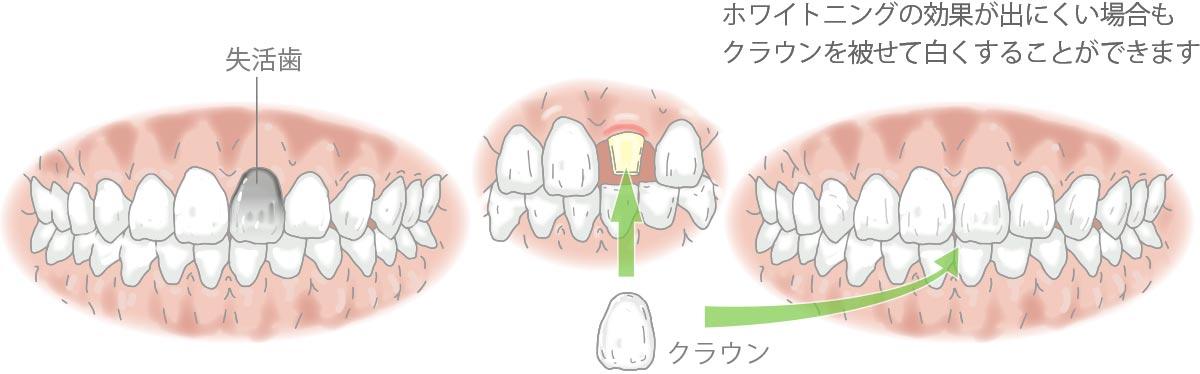 失活歯とクラウン