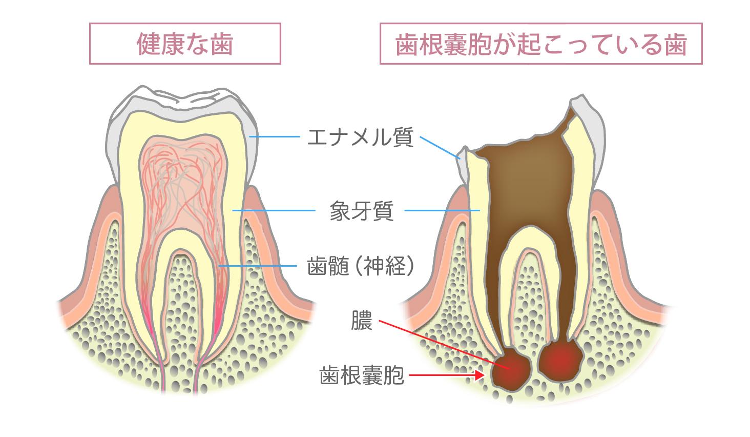 の 歯 時 が 食事 痛い 歯の痛みの原因10選 歯科衛生士がお口の悩みに答えます