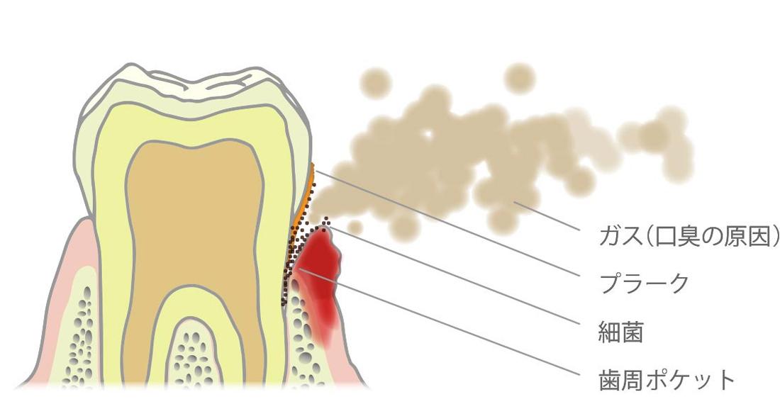 歯周病による口臭のメカニズム