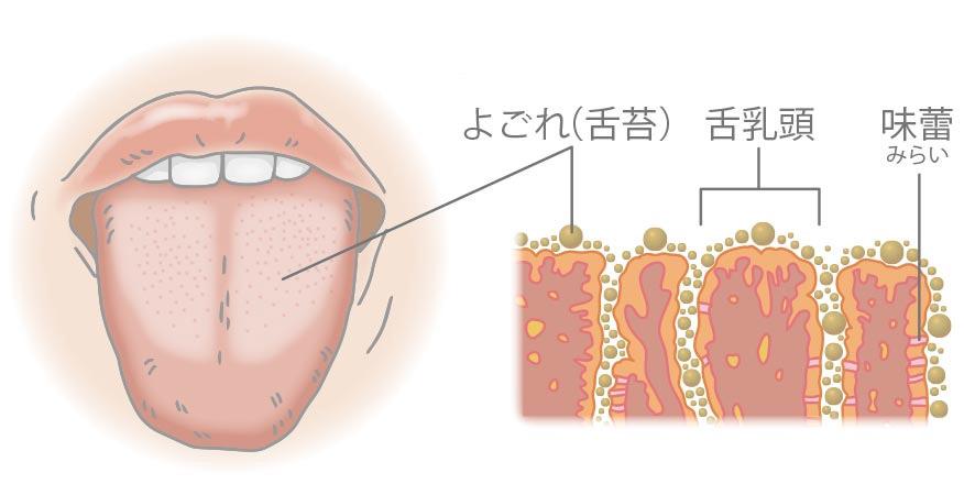 舌苔付着物による口臭のメカニズム