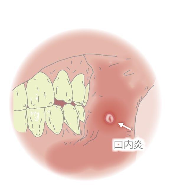 口内炎 痛い とき