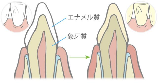加齢による歯の変色